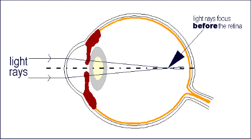 μυωπία (from:Cornea Genetic Eye Institute)