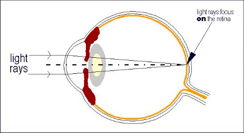 The eye emmetropia ccuart Choice Image