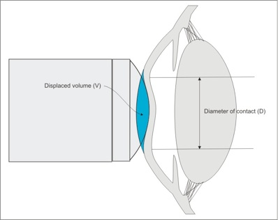 Figure 3. Deformation (indentation) of the cornea displaces a volume of aqueous.