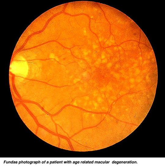 macula degeneration (from:Utah University)