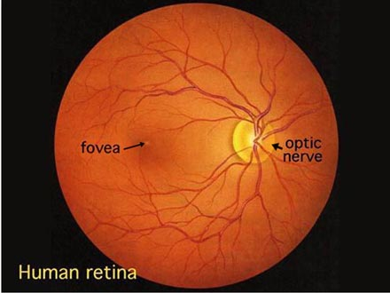 normal retina (from: University of Utah)