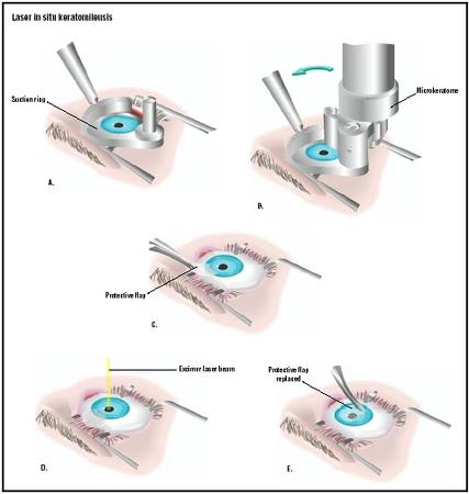 LASIK (from: Encyclopedia of Surgery)